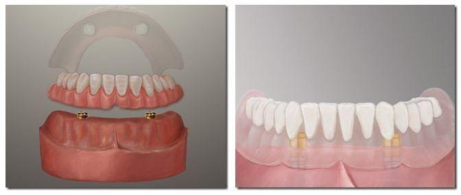 La Porte Dental Implant Dentures